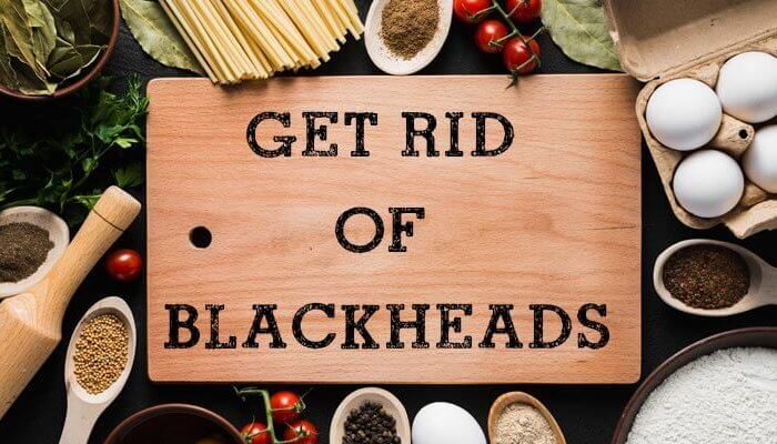 What are blackheads and blackhead removal tips.